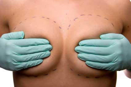 Best-Size-For-Breast-Implants